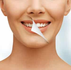 Teeth Cleaning Miami