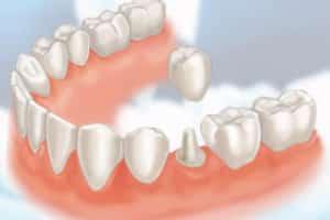 Dental Crowns Miami