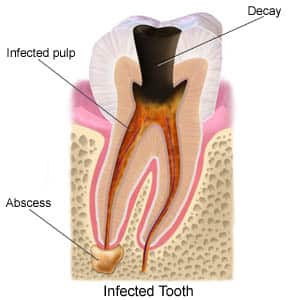 Root Canal Endodontist Miami
