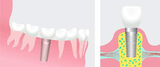 Dental Implants in Miami