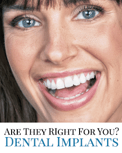 Dental Implants from Artistic Smiles